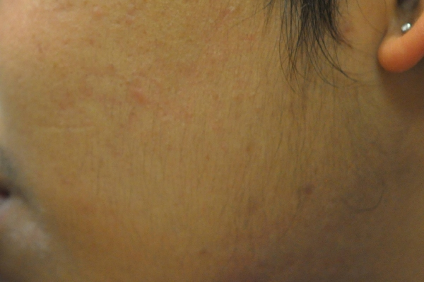 Acne 14 months after treatment