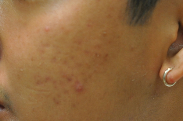 Acne 3 months after treatment