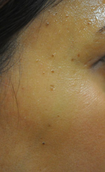Brown spots before treatment
