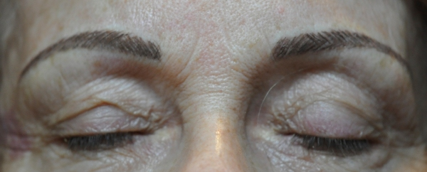 Eyebrows correction after treatment