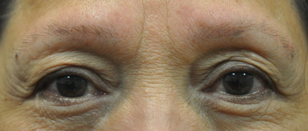 Eyebrows 5 before treatment
