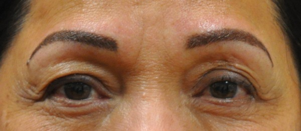 Eyebrows 5 - 7 weeks after treatment